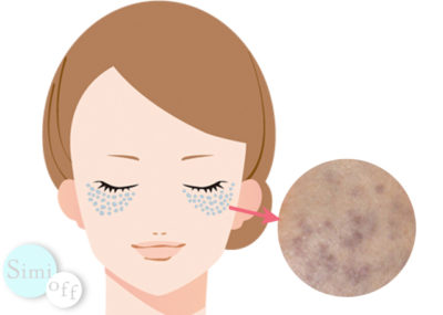遅発性両側性太田母斑のイメージ画像